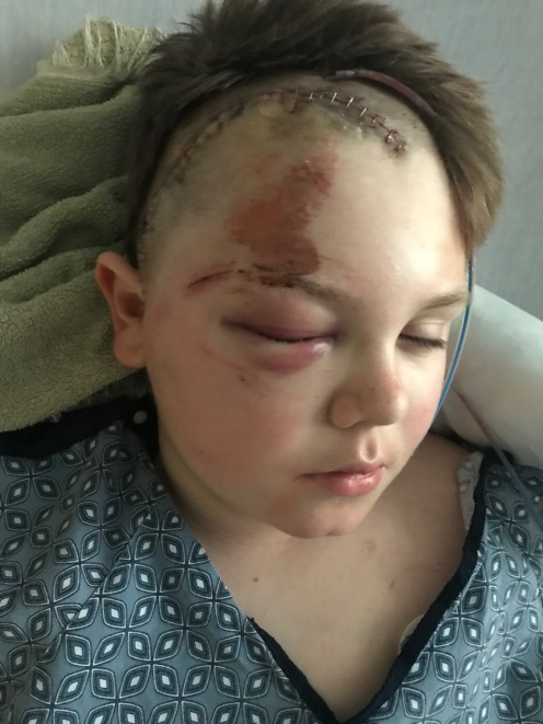 In PICU, the day after being hit by a car.